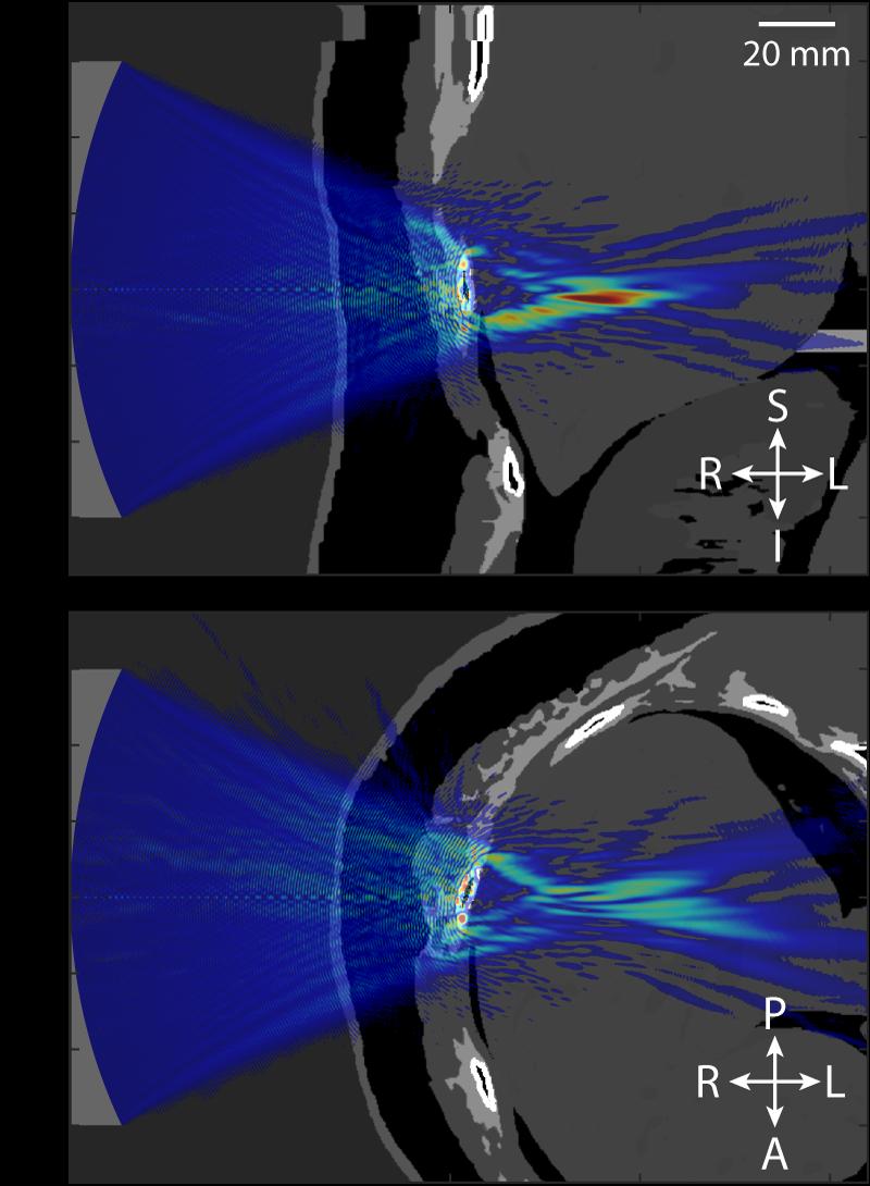 Ultrasound beam distortion