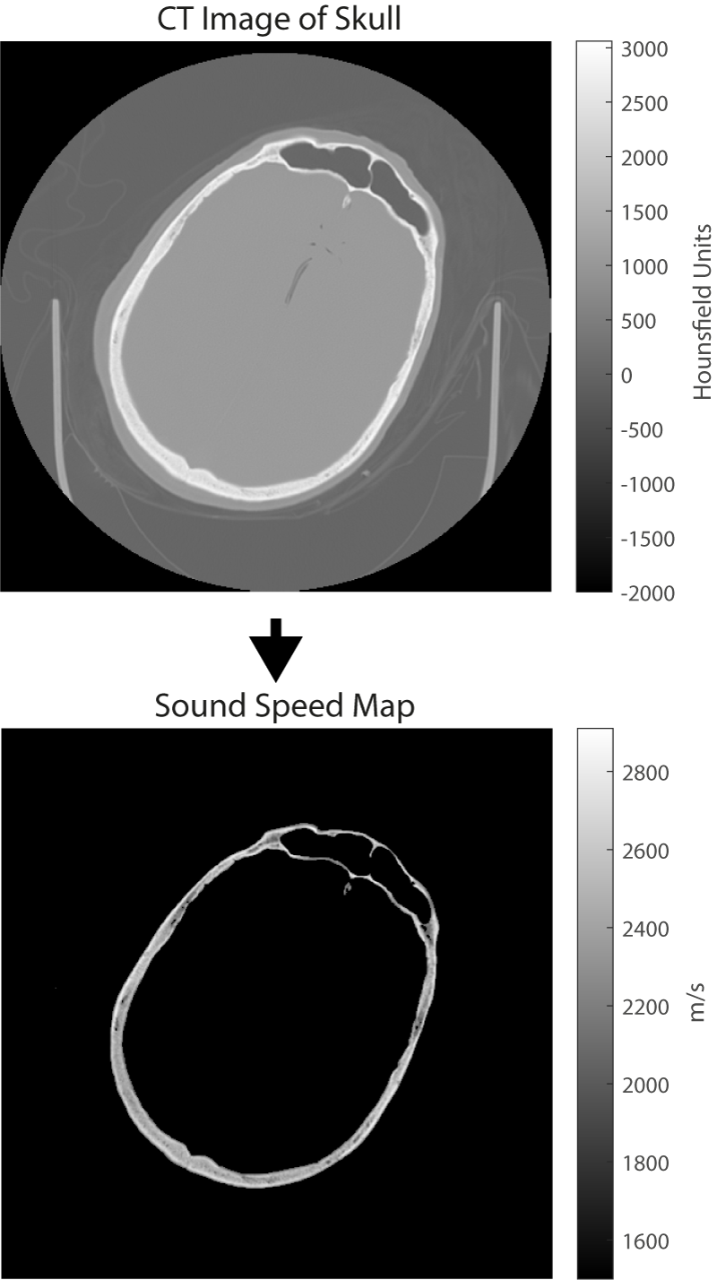Mapping sound speed from CT